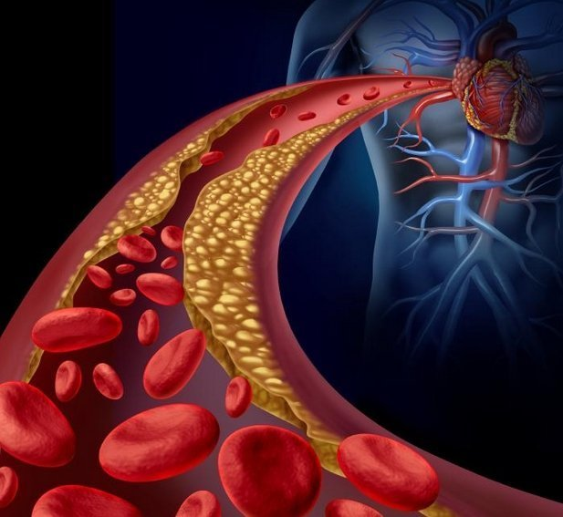 remedios naturales para Arteriosclerosis